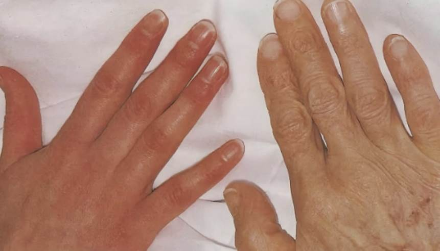 Симптомы анемии на руках пожилых