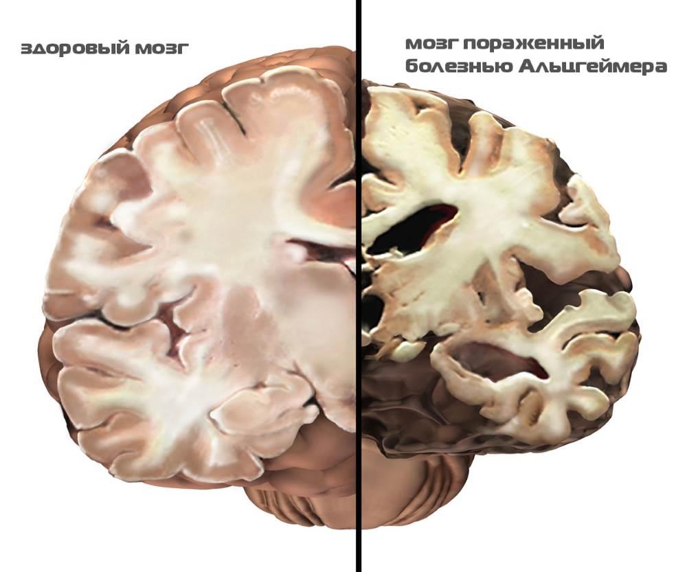 деменция 3.jpg