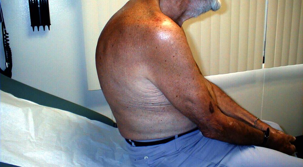 Кифоз у пожилых после перелома позвоночника
